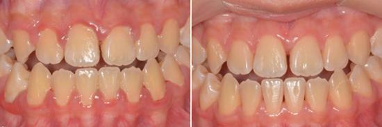 無痛新竹水雷射牙周治療,讓你不再害怕看牙醫!