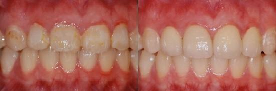 牙齒外觀不完美,讓你害怕面對鏡頭嗎?讓dsd數位微笑設計做你的救星!