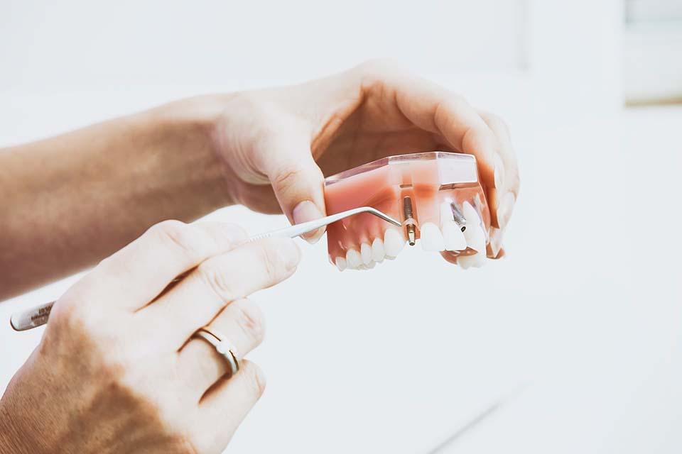 2020牙冠套價錢怎麼算?牙冠品質不同會影響價格嗎?